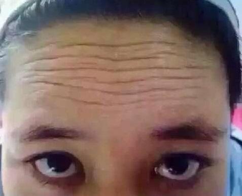 睡眠额头贴20片 淡化额头纹川字纹表情纹