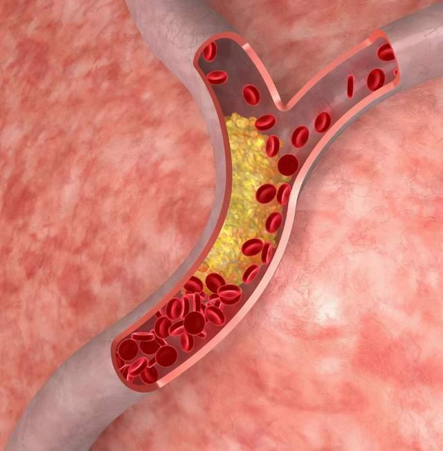 """血管堵塞的人,身体3处会""""疼""""!养血管的方法,学这几个就够了  脑血管堵塞偏方"""