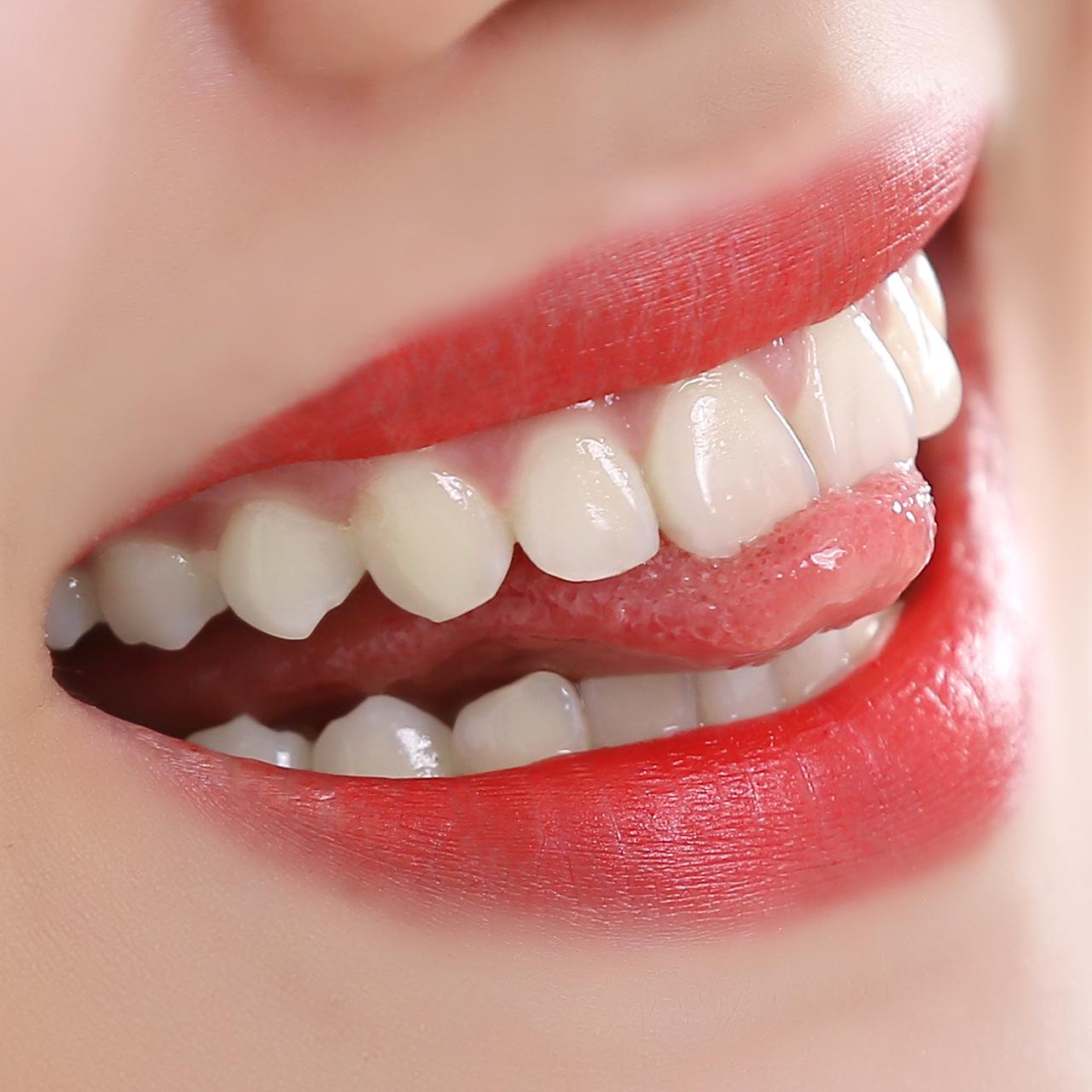 【去烟渍牙渍洗牙粉】一洗白牙齿美白刷牙粉优惠券